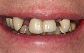 Before Teeth in a Day Treatment