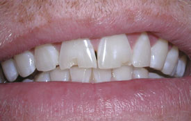 Patient with chipped front tooth