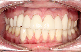 Smile with flawless healthy teeth and gums