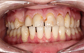 Smile with discoloration at gums