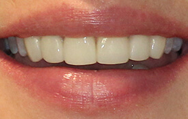 Closeup of picture-perfect front teeth
