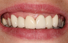 Perfect smile following dental care