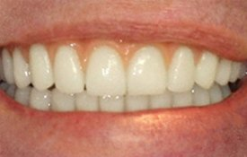 Perfect smile with all-on-6 dental implants