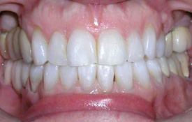 Smile following orthodontic treatment