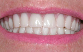 Smile with front tooth gap closed