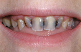 Severely decayed front teeth