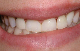 Smile following treatment to close gap between front teeth