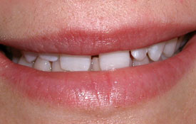Closeup of smile with large gap between front teeth