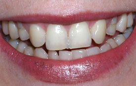 Discolored and damaged teeth