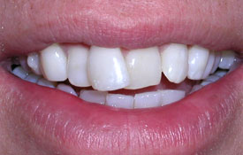 Bright white healthy smile