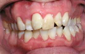 Severely yellowed teeth