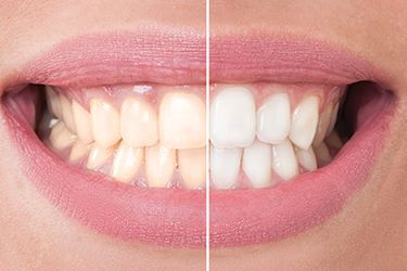 Closeup of smile half before half after teeth whitening