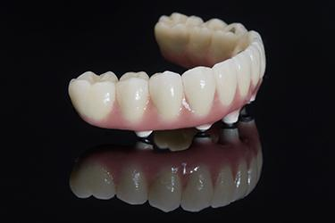 Implant-retained denture sitting by itself on reflective black surface