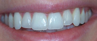 Closeup of flawless smile after Invisalign