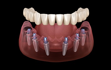 All-on-4/All-on-6 Dental Implants Schenectady, NY 12309 ...