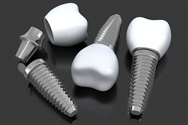 The Type of Implants/ Restorations Used (Implants)
