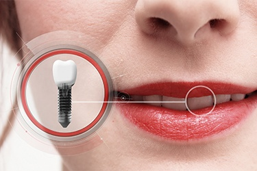 Why Do Dental Implants Cost So Much? (Implants)