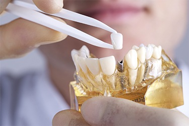 The Value of Dental Implants (Implants)