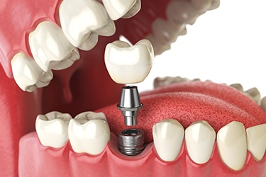 How Does The Dental Implant Procedure Work?