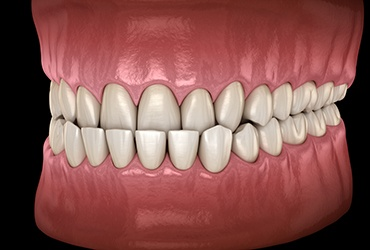 Illustration of a crowded teeth against black background